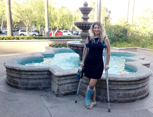 At my aunt's retirement party with a broken ankle